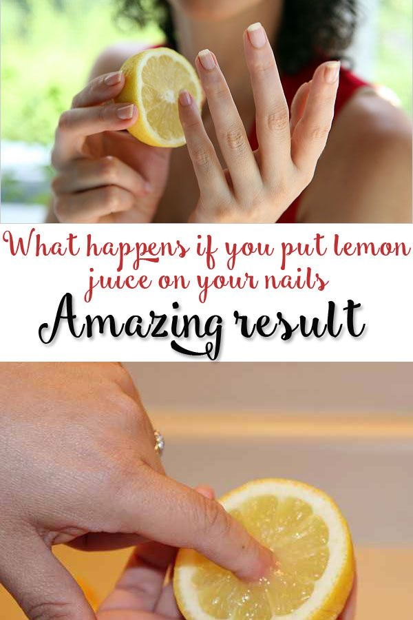 Treat Yellow Nails Safely with Lemon.